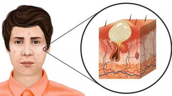 Como se produce el acné