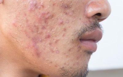 Qué es y como combatir el acné